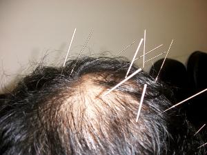 禿頭落髮針灸